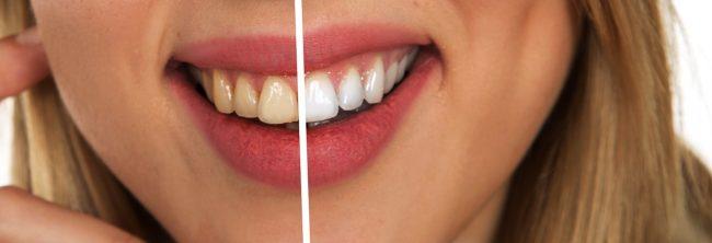 dents brosse